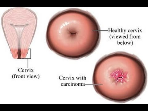 How To Cure Cervical Cancer Naturally