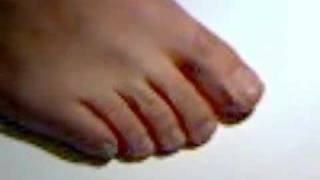 SNAFUs Astounding New Toe Jam and Fluff Removal System