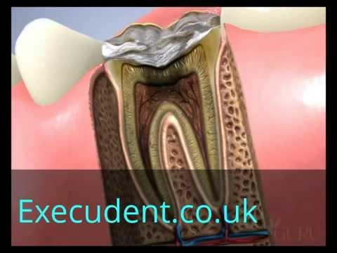 Root Canal -Treatment -Dental Conduit UK