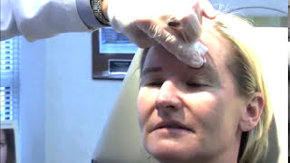 Botox (Chemical) Brow Lift, forehead lift in NYC by Dr Ron Shelton