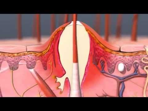 Σπυράκια στο σώμα - Πως δημιουργούνται