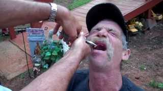 Redneck Dentist: East Texas tooth pulling