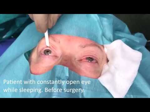 Eye open while sleeping. Surgical treatment - Dr. Aral. LIDMED.com