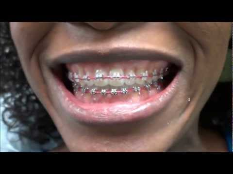 {#94} POWER CHAIN REPLACEMENT ON MY BRACES ~ AT THE ORTHODONTIST OFFICE -8-28-2012
