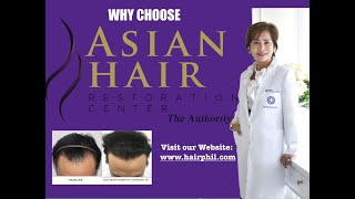 Permanent Solution to Hair Loss Problem ,Philippines.m4v