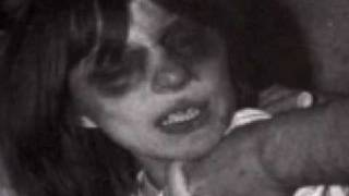 True Story of Exorcism of Anneliese Michel(Emily Rose)(http://www.vaticancatholic.com/ This is the real story behind The Exorcism of Emily Rose. More audio programs can be listened to and downloaded at ..., 2009-01-05T01:17:32.000Z)