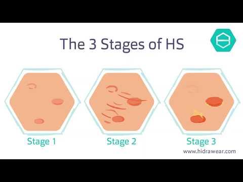 The stages of Hidradenitis Suppurativa