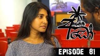 අඩෝ - Ado | Episode - 81 | Sirasa TV Thumbnail