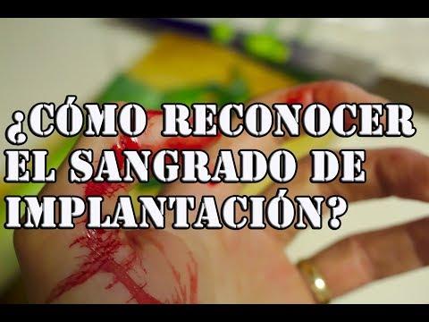 Como reconocer un sangrado de implantacion