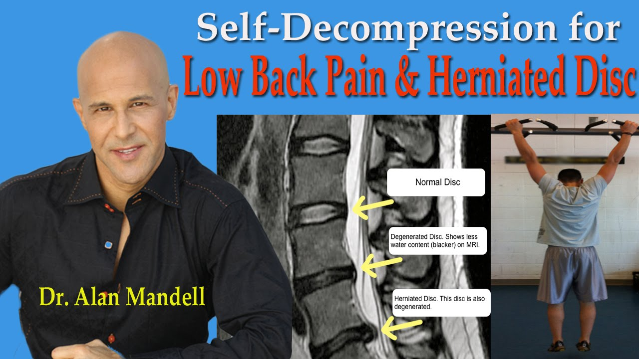 Self-Decompression for Lower Back Pain, Herniated Disc ...