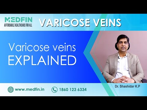 Everything that you need to know about Varicose Veins explained by Dr. Shashidar KP