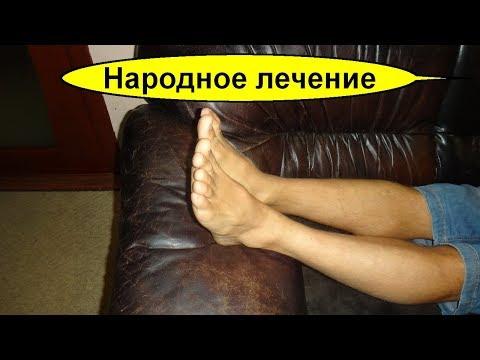 Болят ноги что делать и как помочь? Отеки ног и боль? Сильнейшее Народное лечение