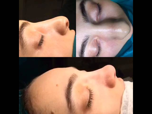 Closed Rhinoplasty - Before and After | Doç. Dr. Süleyman Taş