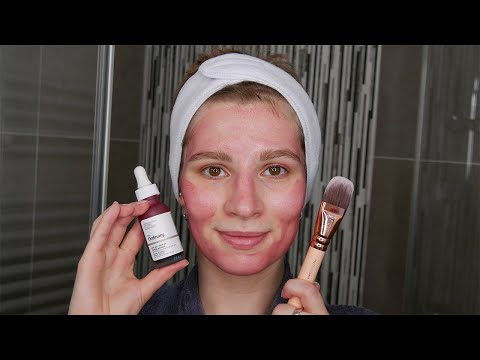 The Best Way To Apply The Ordinary AHA 30% + BHA 2% Peeling Solution | Demonstration On Face!