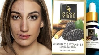 Good Vibes vitamin c & vitamin B3 glow serum | glowing spotless | Acne scars | skin lightening Serum