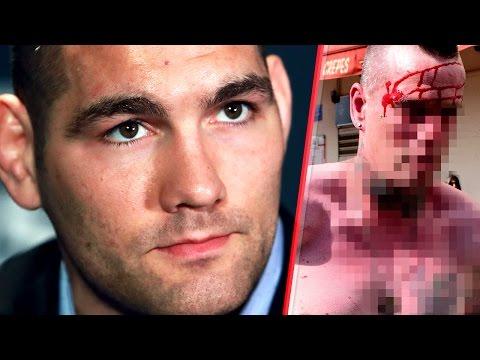 Chris Weidman Recounts Street Fight vs. Three Guys!