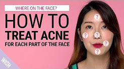 hqdefault - Fresh Face What Your Acne Is Telling You