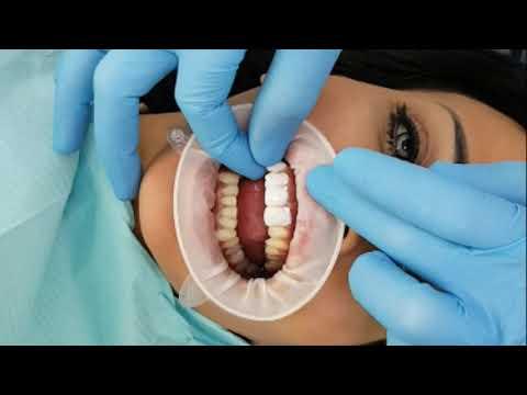 Manchester Medical and Dental centre  UAE sharjah  Dr.izzadeen  0552011202 065547373