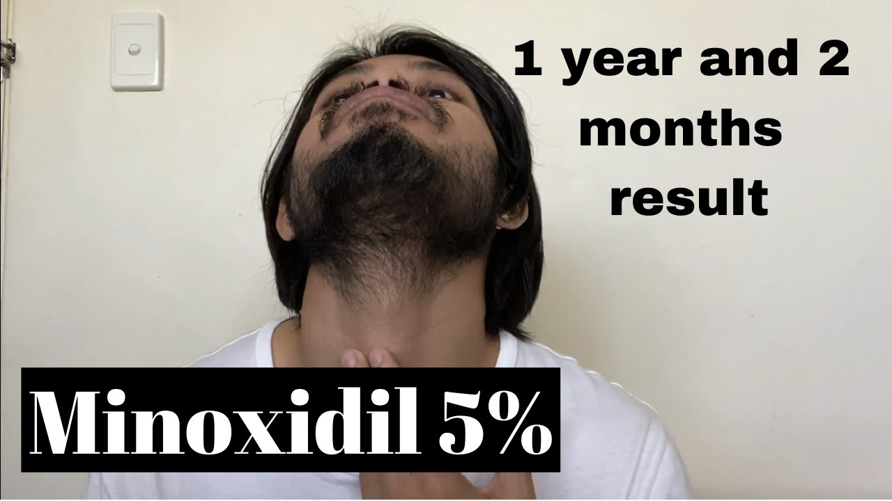 What To Expect For Applying Once A Day Minoxidil 5 Youtube