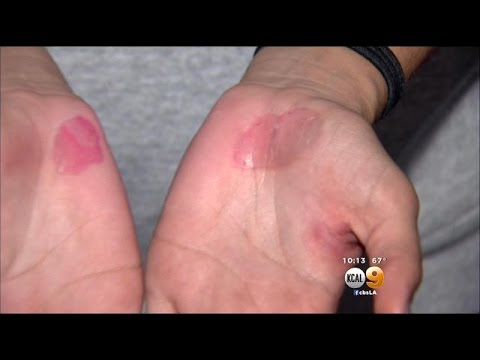 High School Volleyball Coach Fired After Practice On Hot Pavement