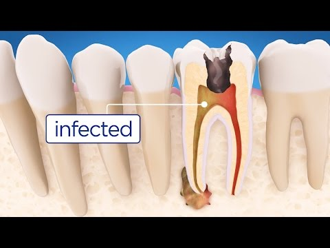 Root Canal Treatment Step By Step