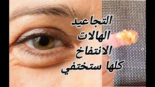 ضعيها ربع ساعة تحت العينين وستختفي فورا الهالات السوداء والترهلات والانتفاخ والتجاعيد حول العينين