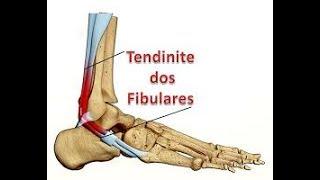 Acima caminhar interno do ao dor tornozelo