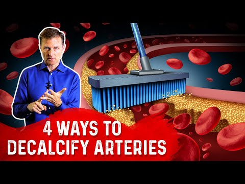 4 Ways To Decalcify Arteries