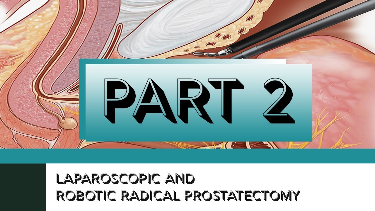 Laparoscopic And Robotic Radical Prostatectomy Part Ii