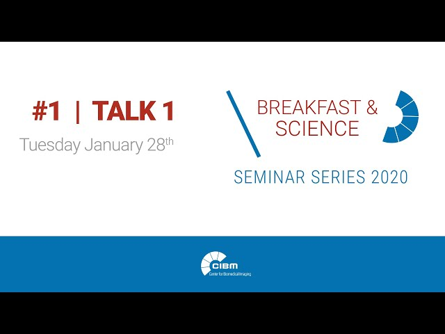 Cardiac MR Imaging in One Click - CIBM Breakfast & Science 1 by Jérôme Yerly