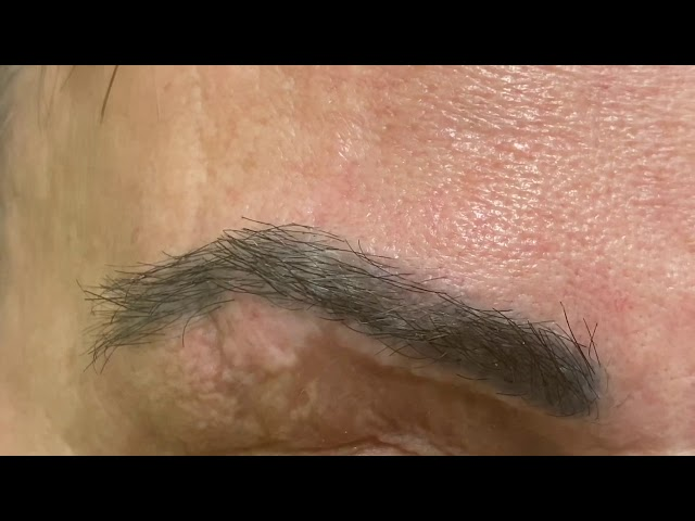 Dallas Eyebrow Hair Transplant Scar Correction Close-Up