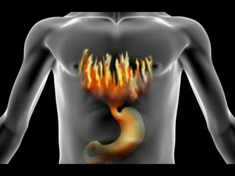 How To Treat Cure Stop Heartburn