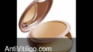 Lakme Vitiligo Makeup Thumbnail