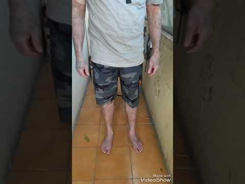 VITILIGO/ LEUCODERMA/safed daag  TREATMENT IN INDIA ,BANGALORE CITY KARNATAK