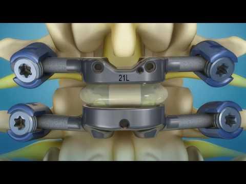 Clinical Trials - Orthopedic Institute of Pennsylvania
