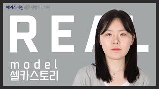 [양악수술,안면윤곽,사각턱축소수술,아큐리프팅]안면비대칭…