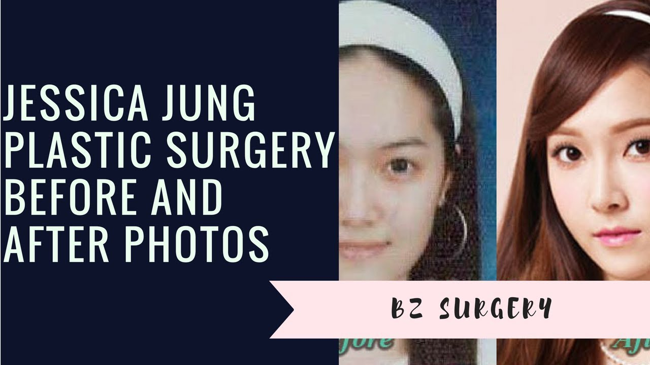 Jessica Jung Plastic Surgery Before And After Photos Youtube