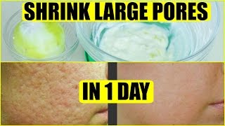 How Get Rid Large Pores Day