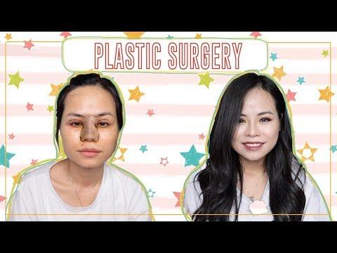 MÌNH ĐÃ PHẪU THUẬT THẨM MỸ ♡My Plastic Surgery Story♡ Tuta Nguyen
