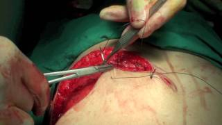Operation 8 (Part 2) - Simple Mastectomy and Expander