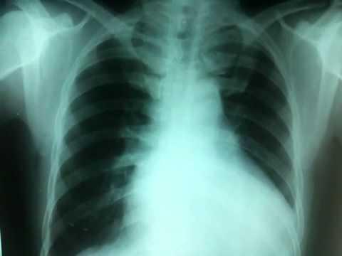 Cardiomegalia - YouTube