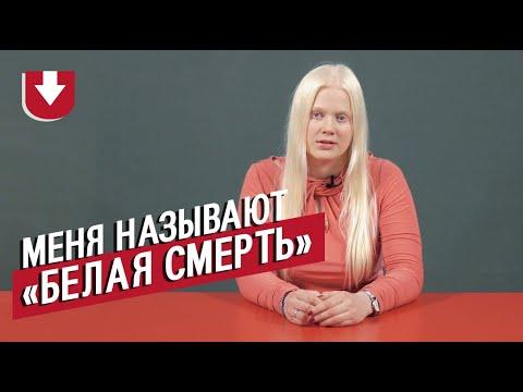 Альбиносы | Неудобные вопросы