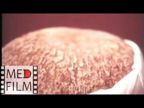 Фавус - грибок головы, кожи, ногтей © Favus, Dermatophyte