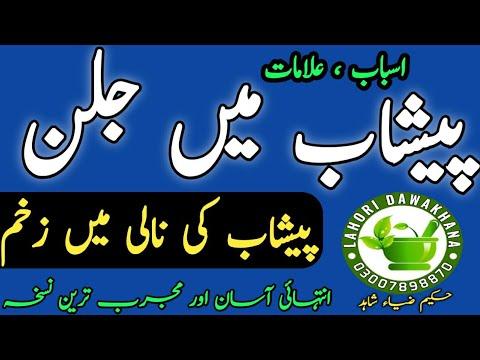 Peshab main jalan ka ilaj    Urine burning Treatment In Herbal By Hakeem Zia Shahid