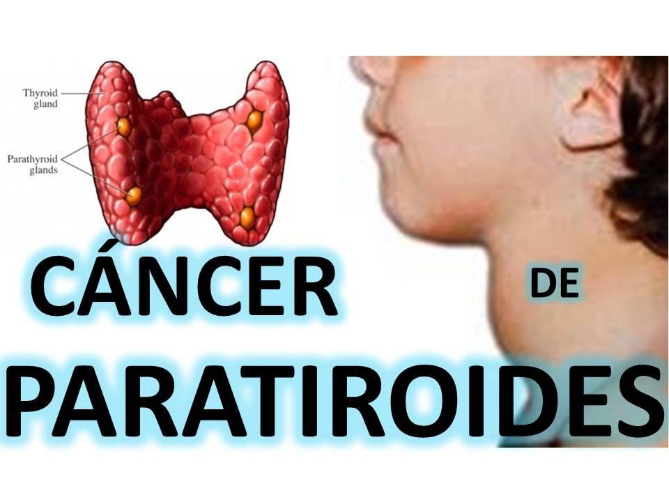CÁNCER DE PARATIROIDES - YouTube