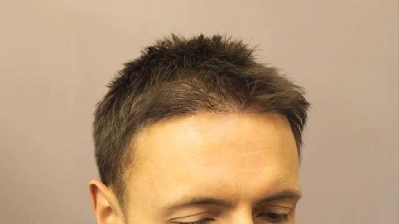 Fue By Dr Reddy 30 Year Old Gentleman With Norwood3 3849 Hair