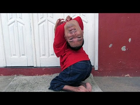 Man Born With Upside Down Head – Amazing Story