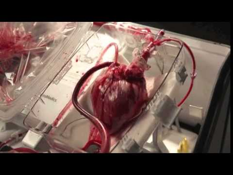 Heart beating in Transmedic's Organ Care System