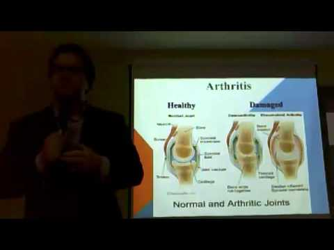 Joints, Cartilage Nutrition from Natural ingredients