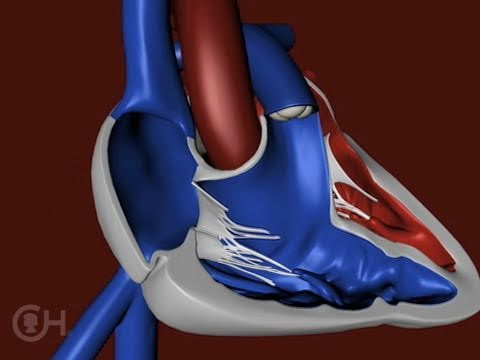 The Structure of a Heart with Tetralogy of Fallot (TOF) - The Children's Hospital of Philadelphia